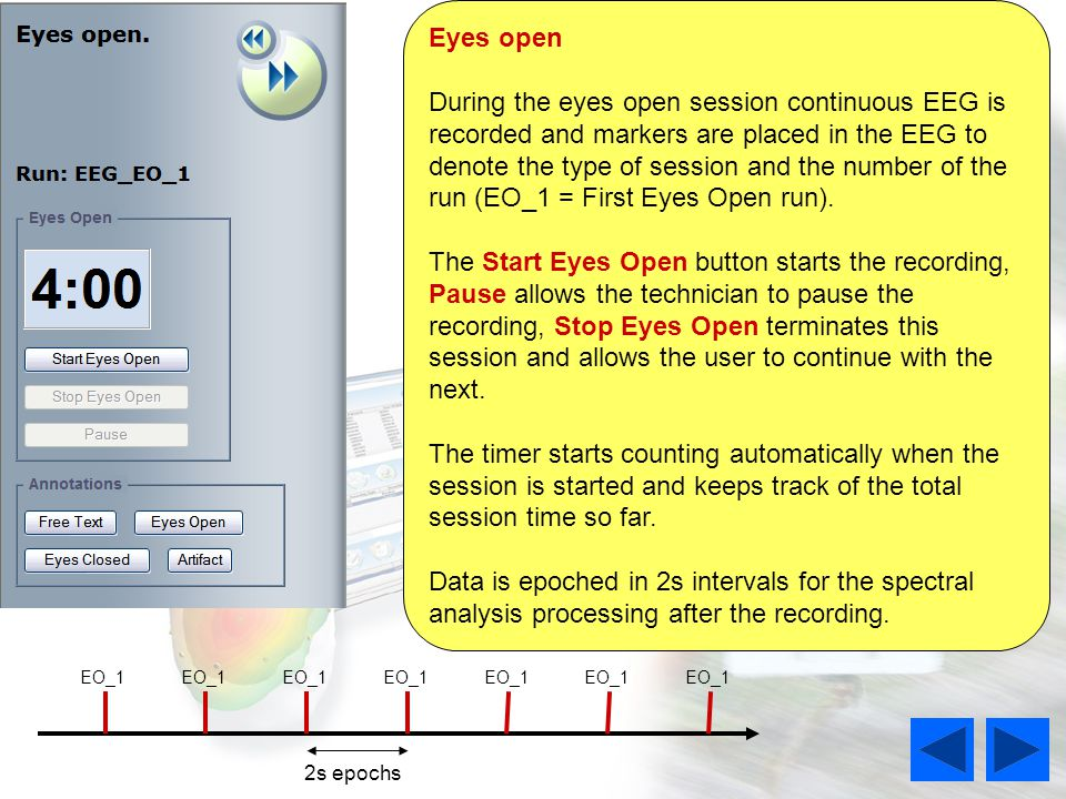 EO_1 2s epochs Eyes open During the eyes open session continuous EEG is recorded and markers are placed in the EEG to denote the type of session and the number of the run (EO_1 = First Eyes Open run).