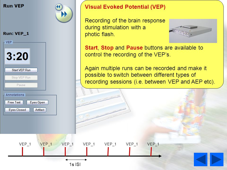 Visual Evoked Potential (VEP) Recording of the brain response during stimulation with a photic flash.