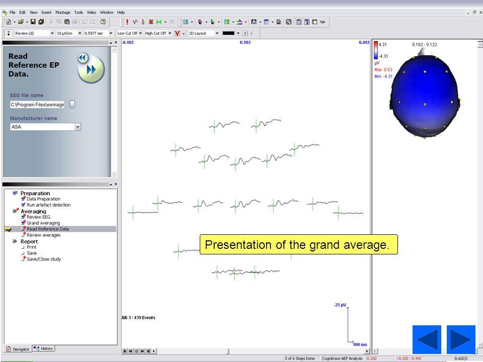 Presentation of the grand average.
