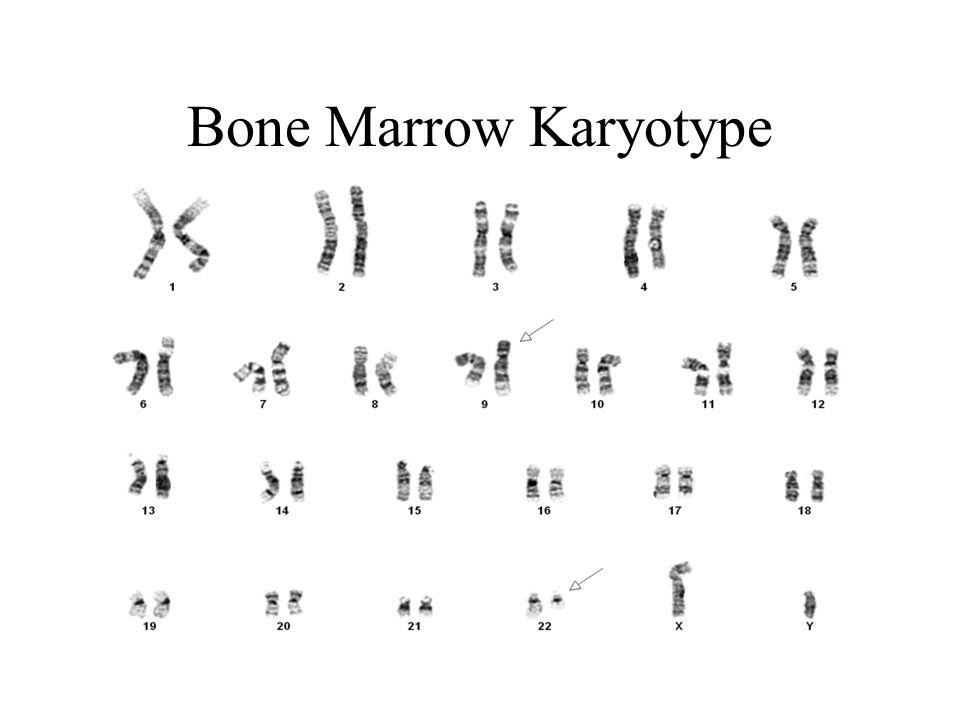 Bone Marrow Karyotype