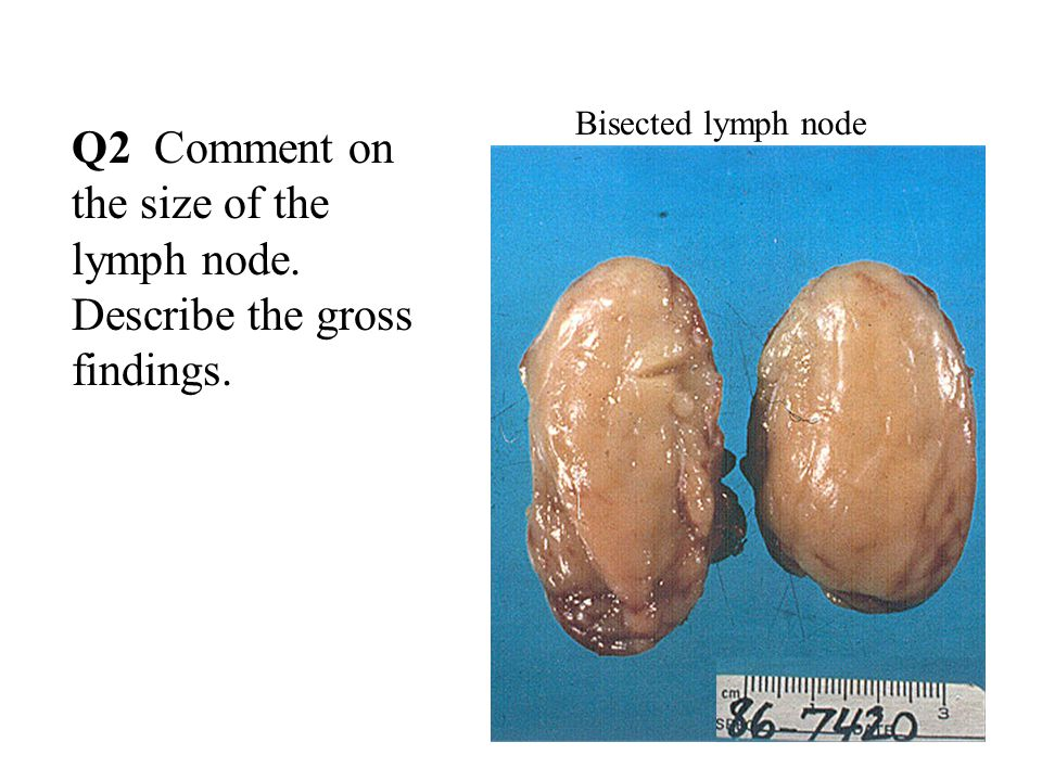 Q2 Comment on the size of the lymph node. Describe the gross findings. Bisected lymph node