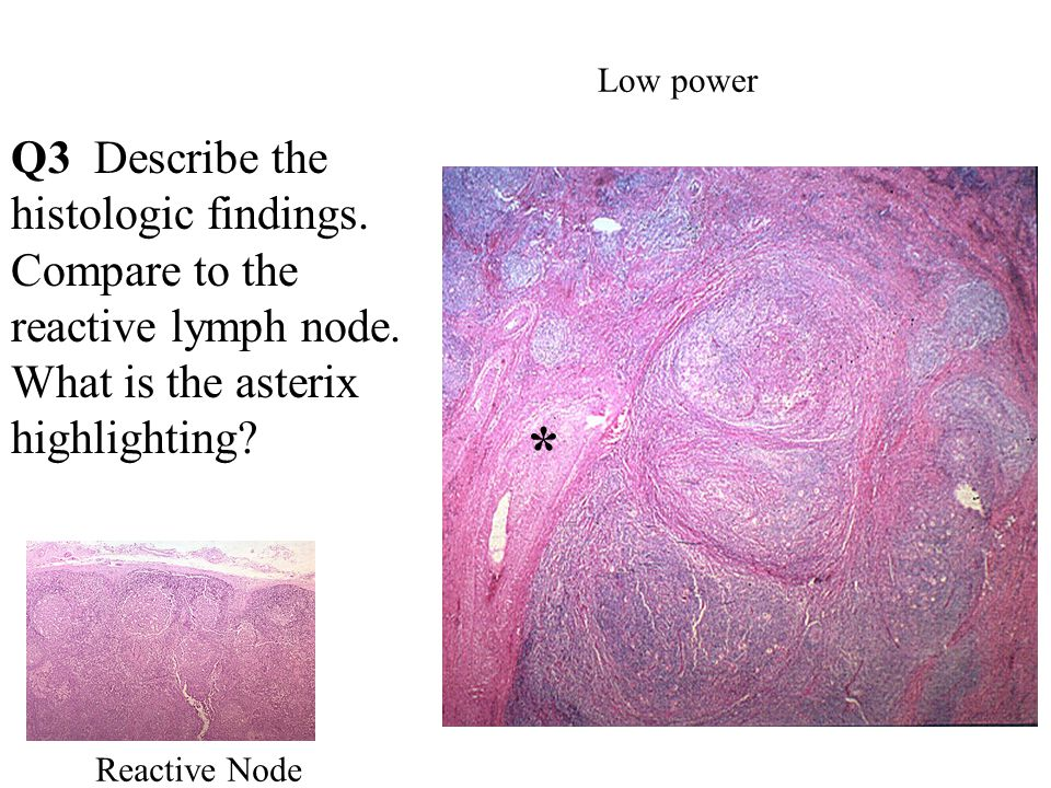 Low power Q3 Describe the histologic findings. Compare to the reactive lymph node.