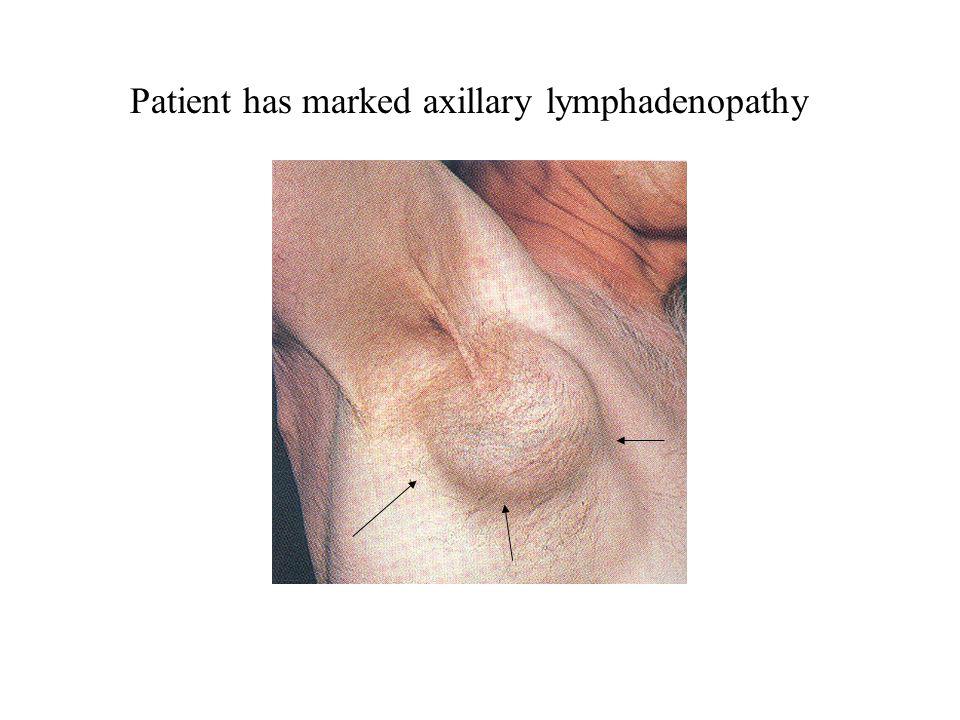 Patient has marked axillary lymphadenopathy