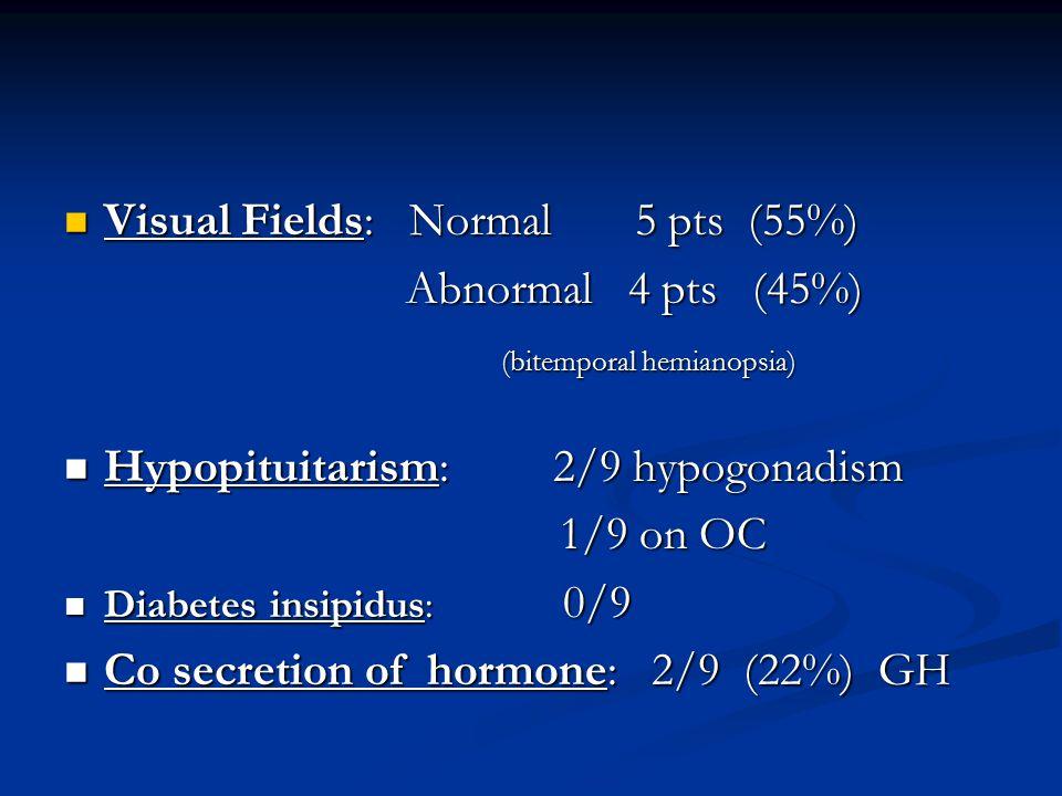 Visual Fields: Normal 5 pts (55%) Visual Fields: Normal 5 pts (55%) Abnormal 4 pts (45%) Abnormal 4 pts (45%) (bitemporal hemianopsia) (bitemporal hem