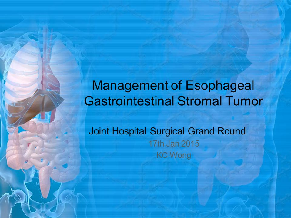 Management of esophageal GIST What is the radiological study of choice.