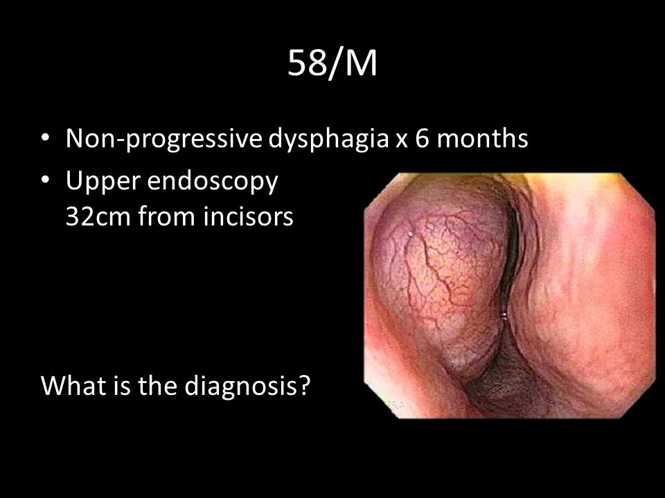 Surgical approach- esophagectomy vs enucleation No comparative studies currently available Overall survival Enucleation Survival (months) Esophagectomy/ esophagogastrectomy Enucleation Log-rank test p= 0.04
