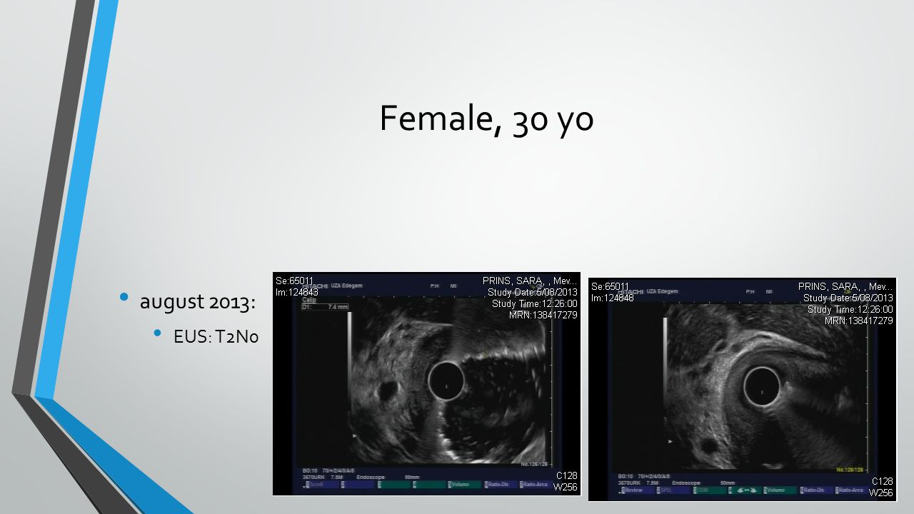 Female, 30 yo august 2013: EUS: T2N0