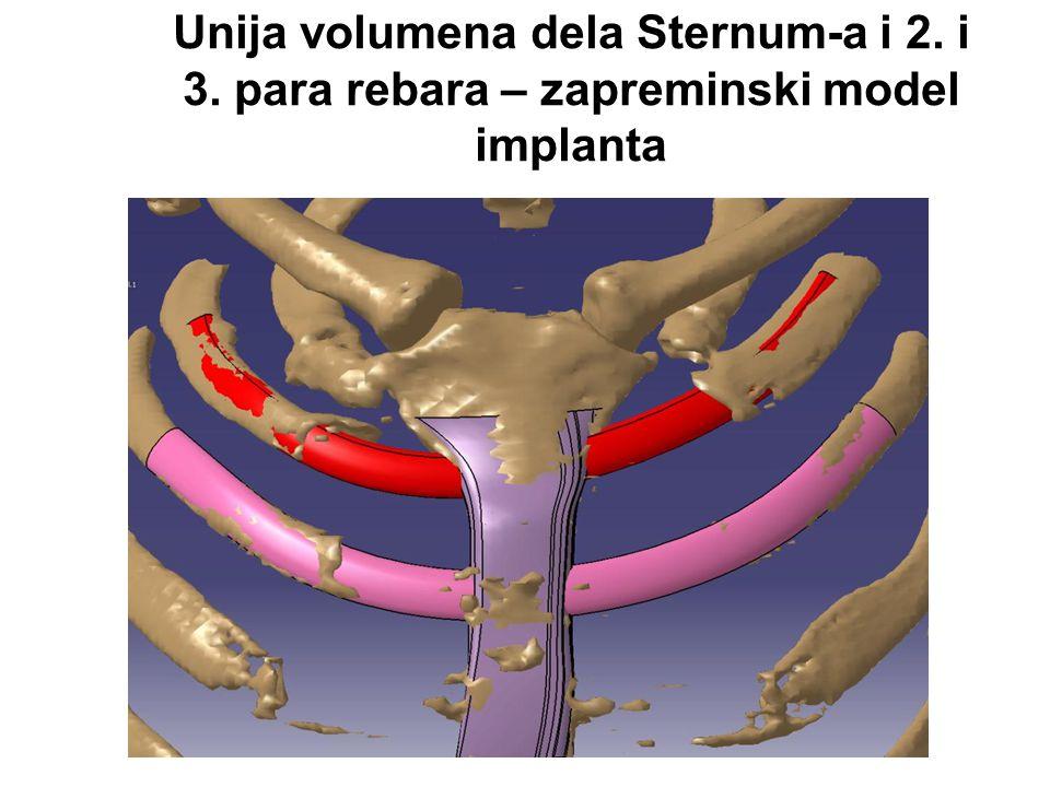 Unija volumena dela Sternum-a i 2. i 3. para rebara – zapreminski model implanta