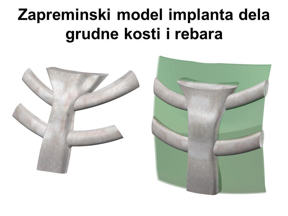 Zapreminski model implanta dela grudne kosti i rebara