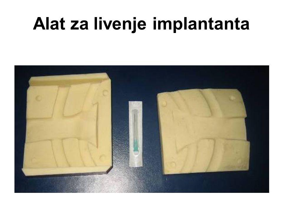 Alat za livenje implantanta