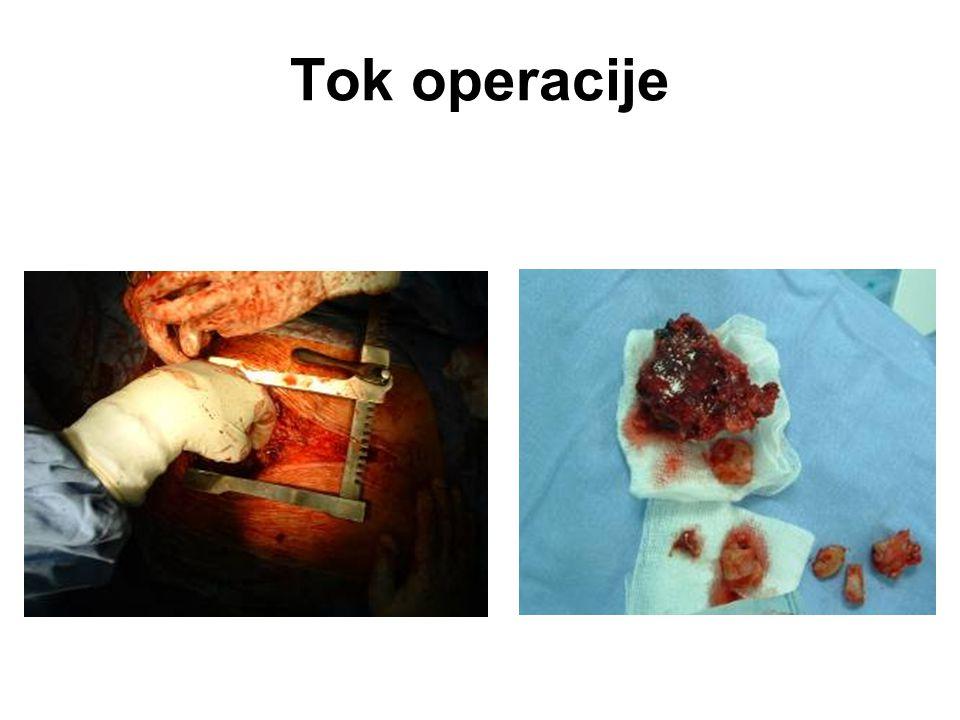 Tok operacije