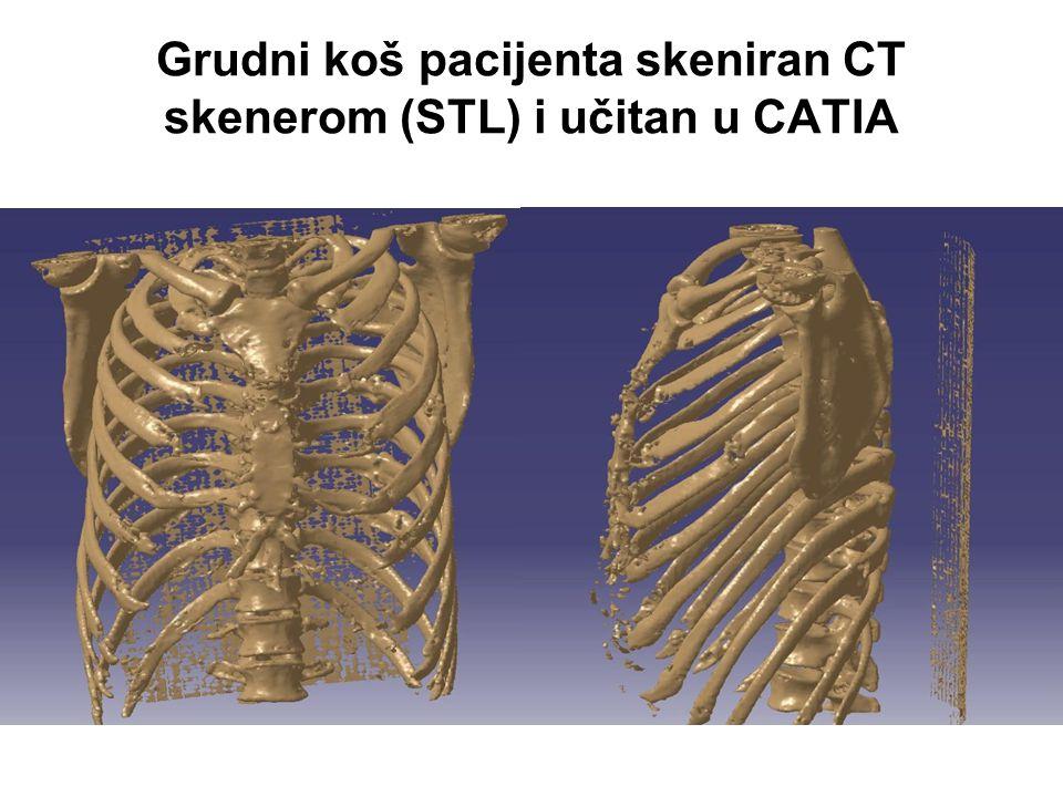 Grudni koš pacijenta skeniran CT skenerom (STL) i učitan u CATIA