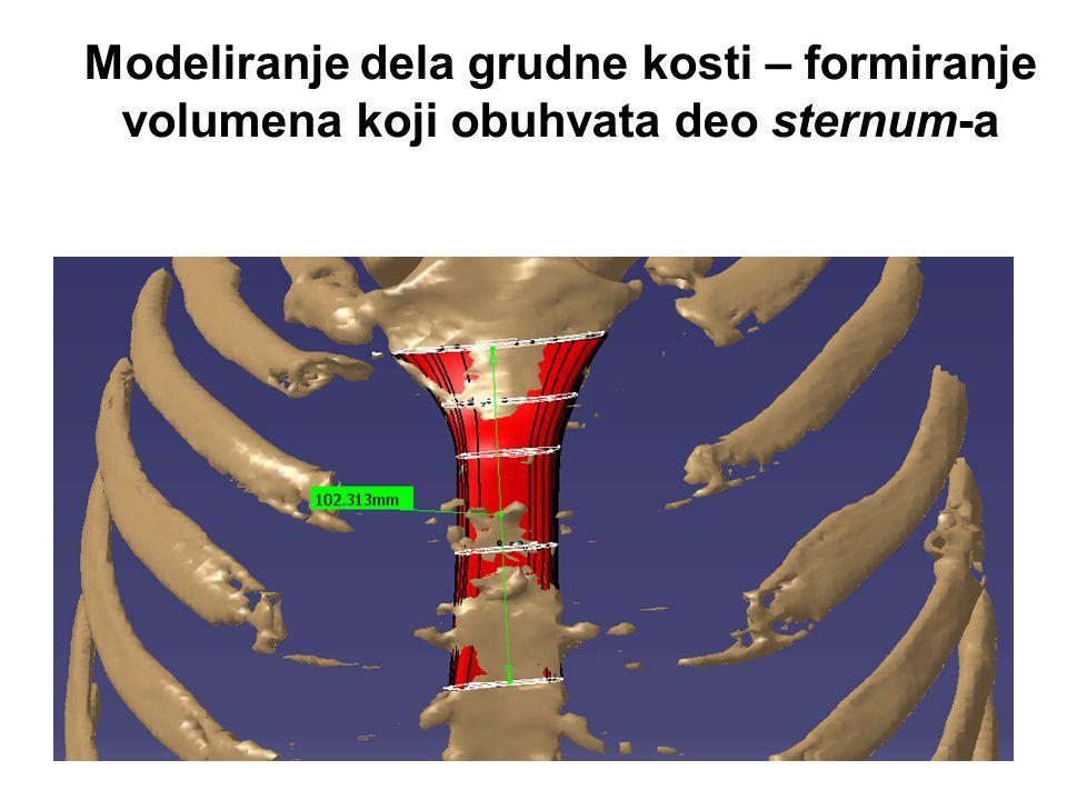 Modeliranje dela grudne kosti – formiranje volumena koji obuhvata deo sternum-a