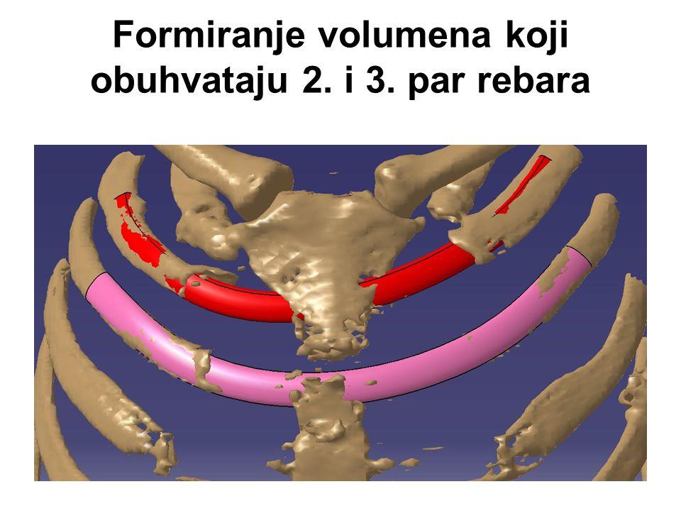 Formiranje volumena koji obuhvataju 2. i 3. par rebara