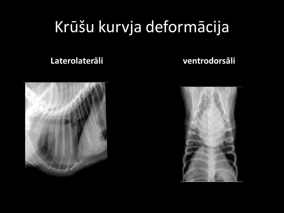 Krūšu kurvja deformācija Laterolaterāli ventrodorsāli