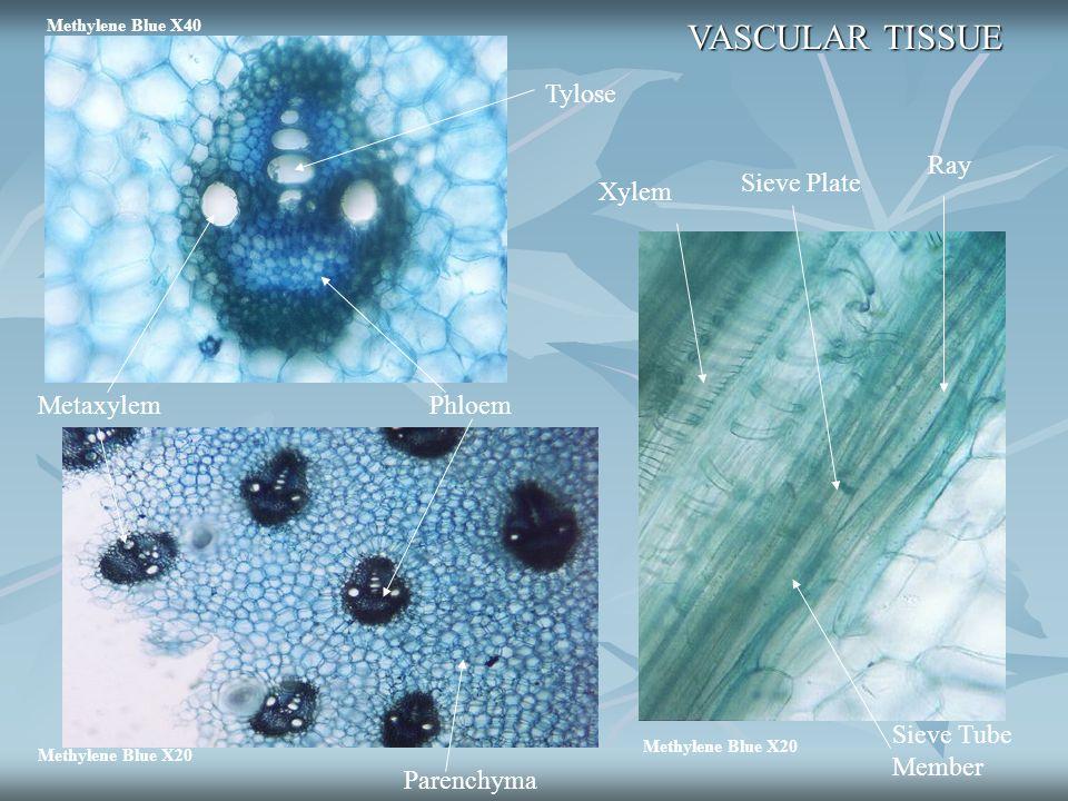 Methylene Blue X20 Parenchyma MetaxylemPhloem Methylene Blue X40 Tylose VASCULAR TISSUE Xylem Sieve Plate Ray Sieve Tube Member