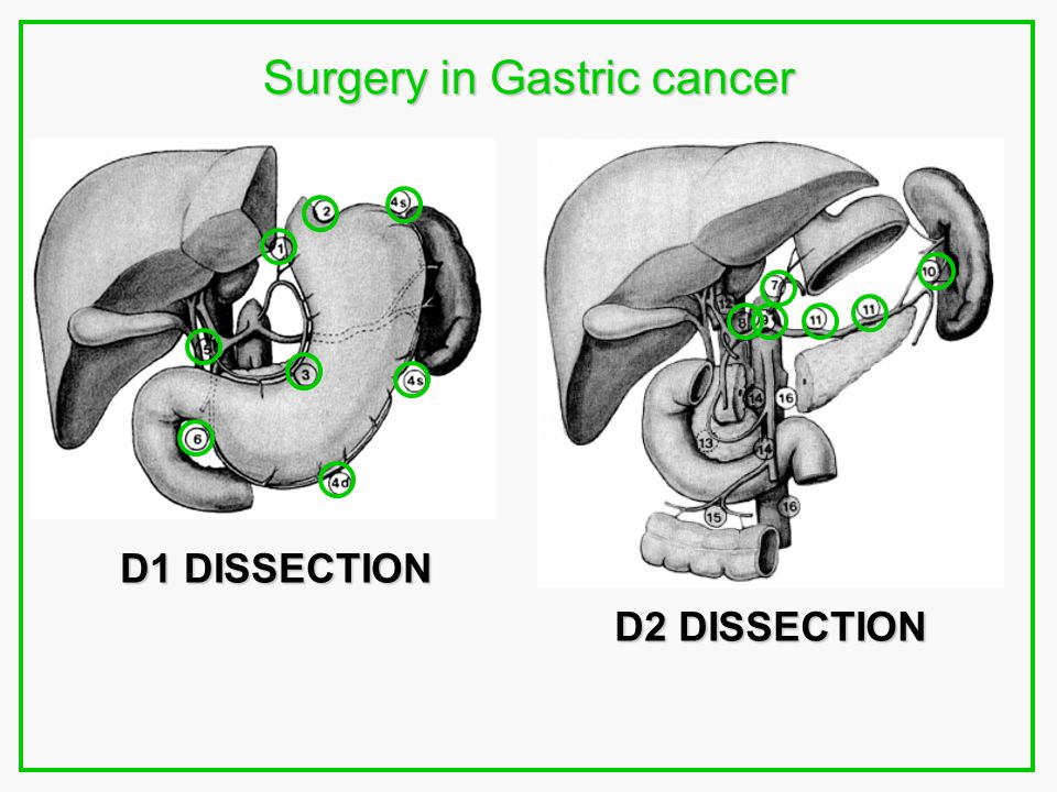 Surgery in Gastric cancer D1 DISSECTION D2 DISSECTION