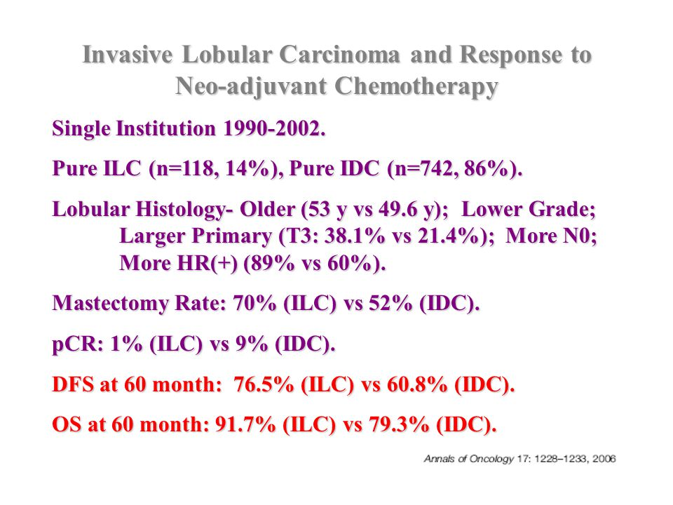 Invasive Lobular Carcinoma and Response to Neo-adjuvant Chemotherapy Single Institution 1990-2002. Pure ILC (n=118, 14%), Pure IDC (n=742, 86%). Lobul