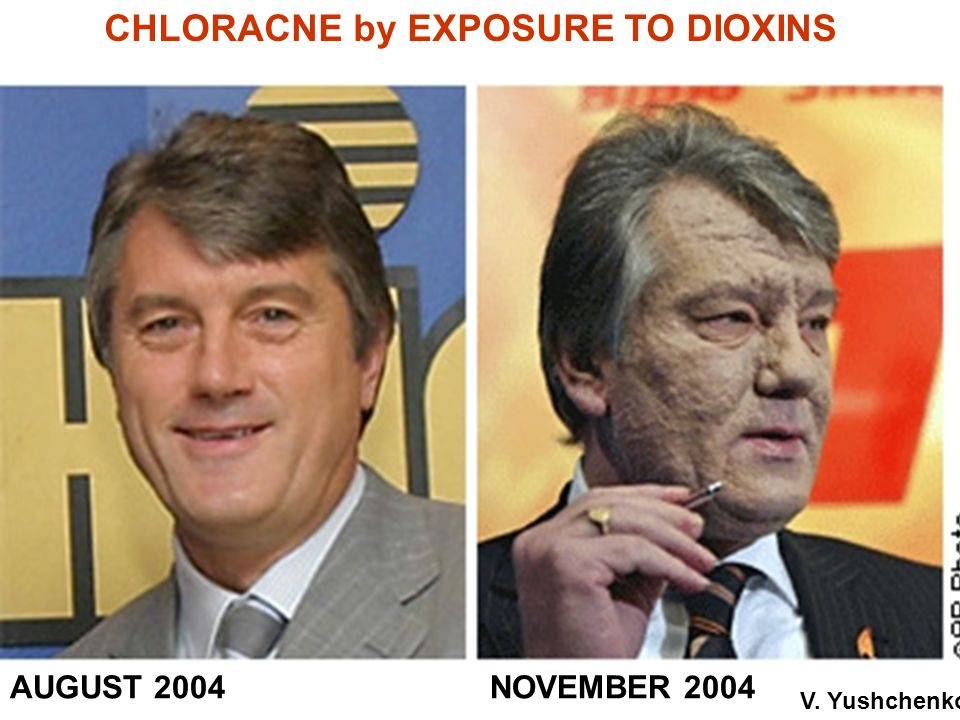 CHLORACNE by EXPOSURE TO DIOXINS AUGUST 2004NOVEMBER 2004 V. Yushchenko