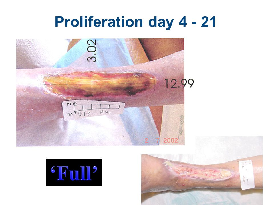 Fibrin, Collagen Bridge to Skin Yellow, caramel like surface, pain Granulation peeking, epithelial starting 6
