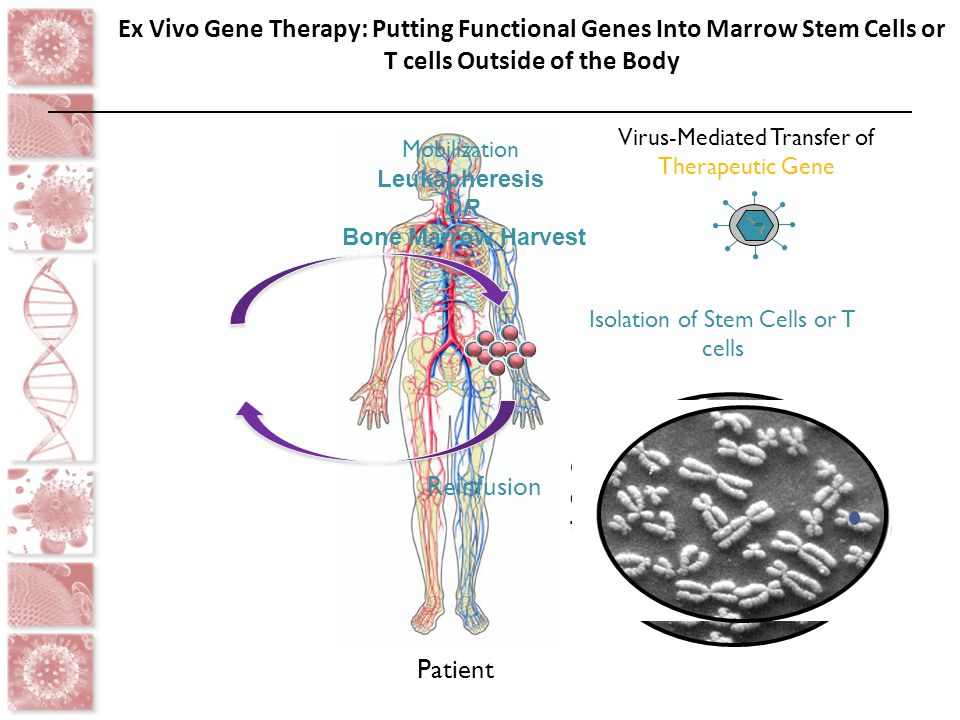 Patient Ex Vivo Gene Therapy: Putting Functional Genes Into Marrow Stem Cells or T cells Outside of the Body Mobilization Leukapheresis OR Bone Marrow