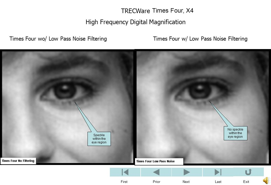 TRECWare High Frequency Digital Magnification First Prior Next Last Exit Times Four wo/ Low Pass Noise Filtering Times Four w/ Low Pass Noise Filtering Times Four, X4 No speckle within the eye region Speckle within the eye region