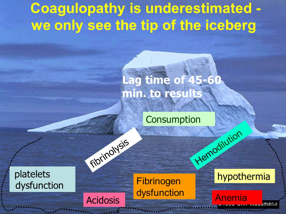 Coagulopathy is underestimated - we only see the tip of the iceberg Acidosis hypothermia platelets dysfunction fibrinolysis Hemodilution Anemia Consumption Lag time of 45-60 min.
