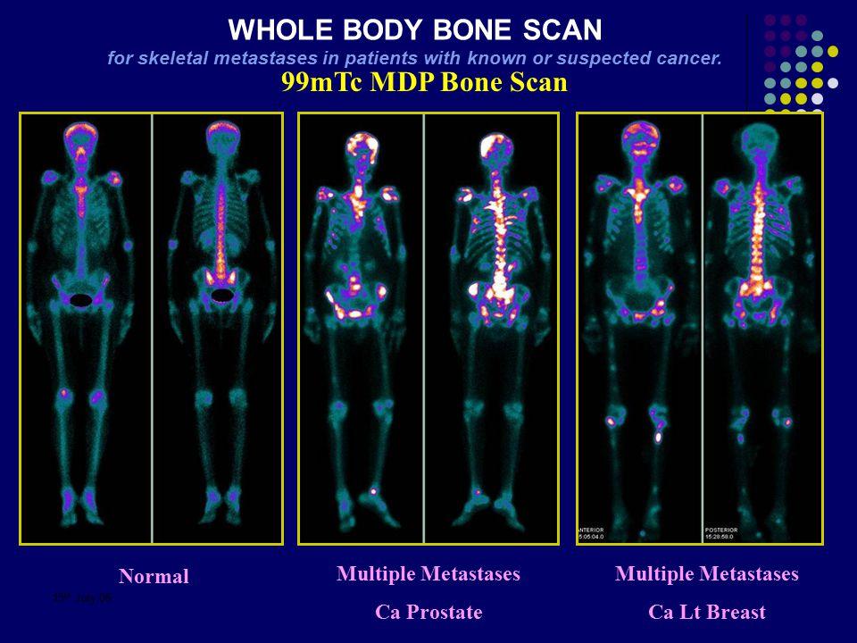 15 th July 06 99mTc MDP Bone Scan Multiple Metastases Ca Prostate Normal Multiple Metastases Ca Lt Breast WHOLE BODY BONE SCAN for skeletal metastases