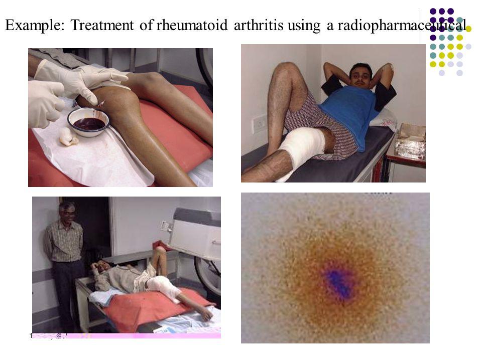 15 th July 06 Example: Treatment of rheumatoid arthritis using a radiopharmaceutical