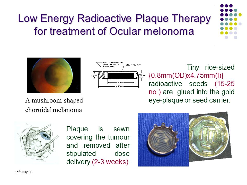15 th July 06 Low Energy Radioactive Plaque Therapy for treatment of Ocular melonoma Tiny rice-sized {0.8mm(OD)x4.75mm(l)} radioactive seeds (15-25 no