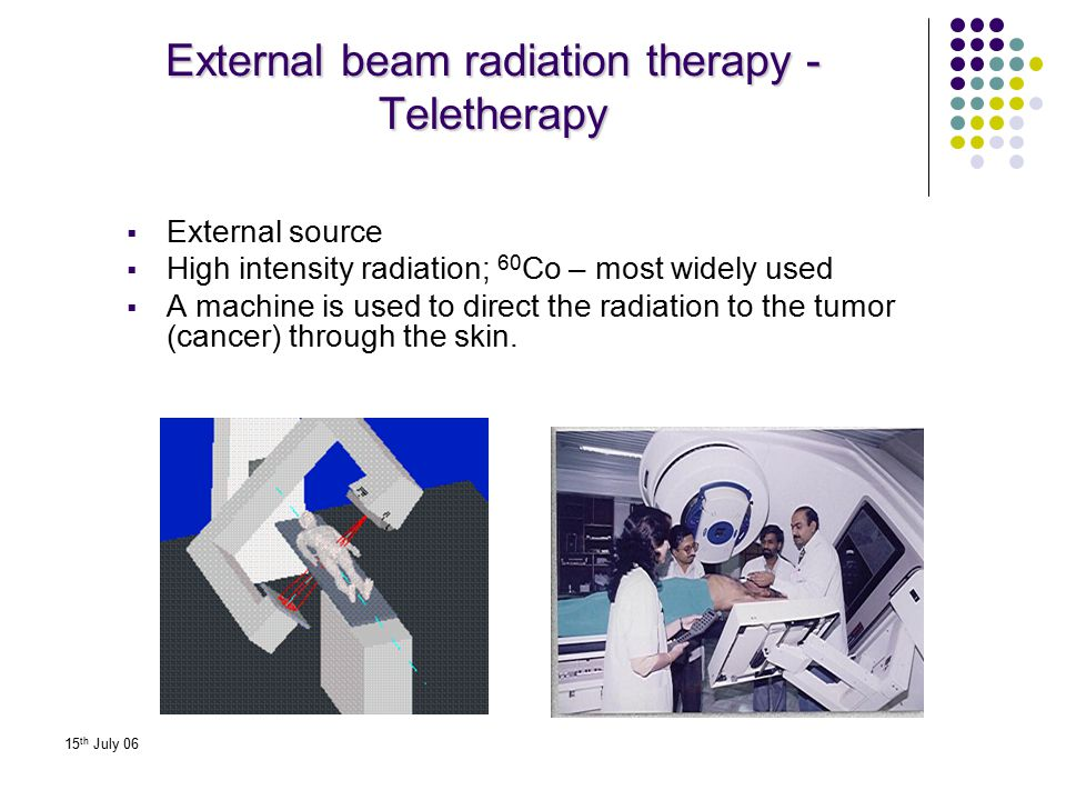 15 th July 06 External beam radiation therapy - Teletherapy  External source  High intensity radiation; 60 Co – most widely used  A machine is used
