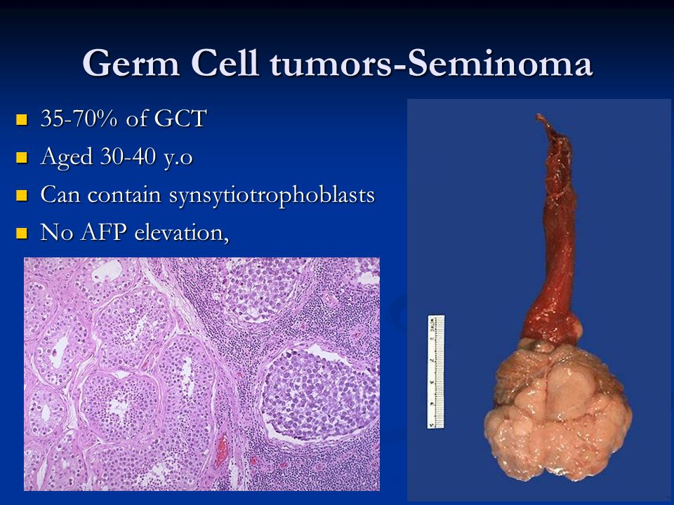 Germ Cell tumors-Seminoma 35-70% of GCT 35-70% of GCT Aged 30-40 y.o Aged 30-40 y.o Can contain synsytiotrophoblasts Can contain synsytiotrophoblasts