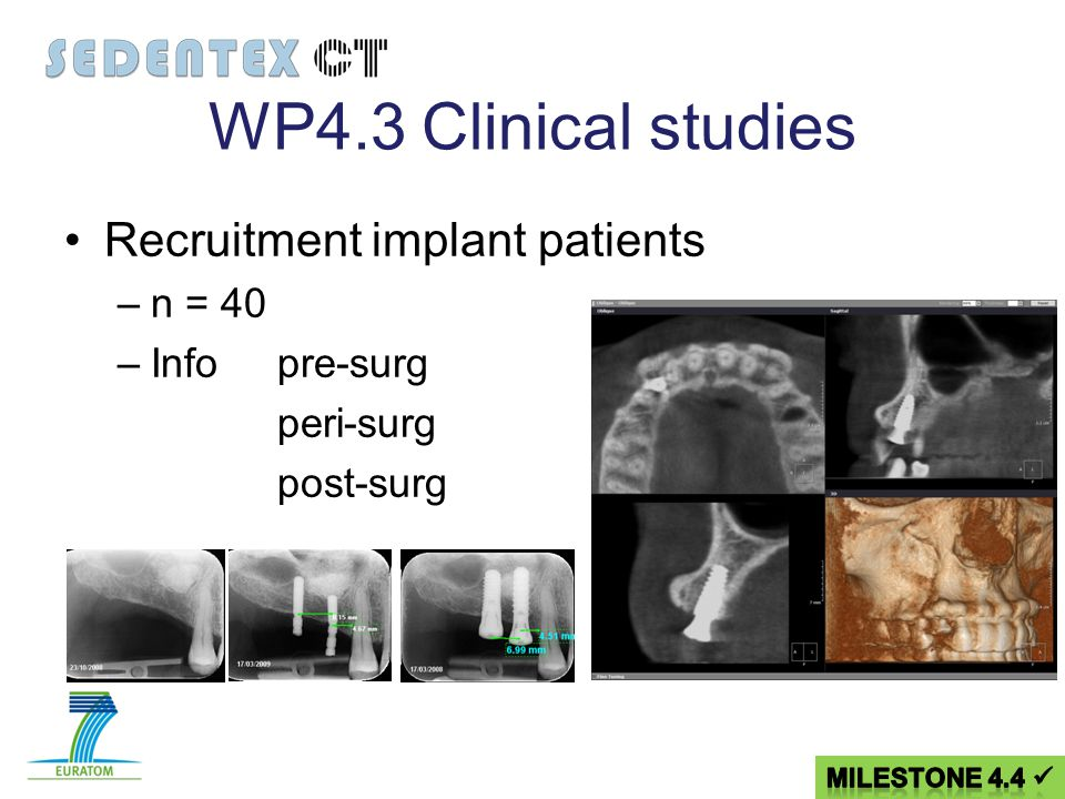 WP4.3Clinical studies Recruitment implant patients –n = 40 –Infopre-surg peri-surg post-surg