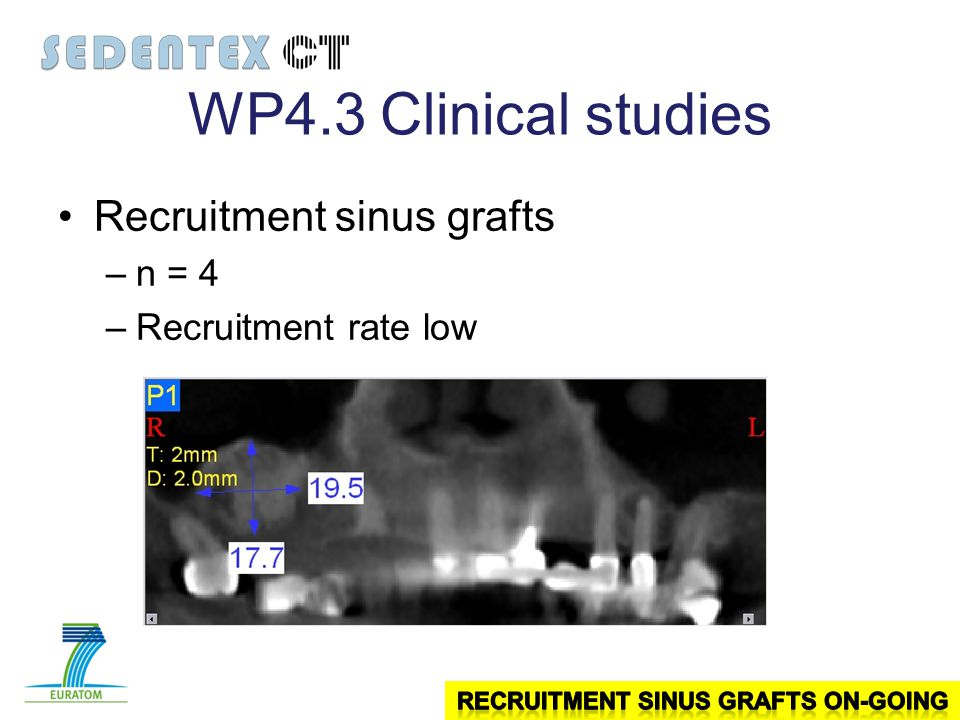 WP4.3Clinical studies Recruitment sinus grafts –n = 4 –Recruitment rate low