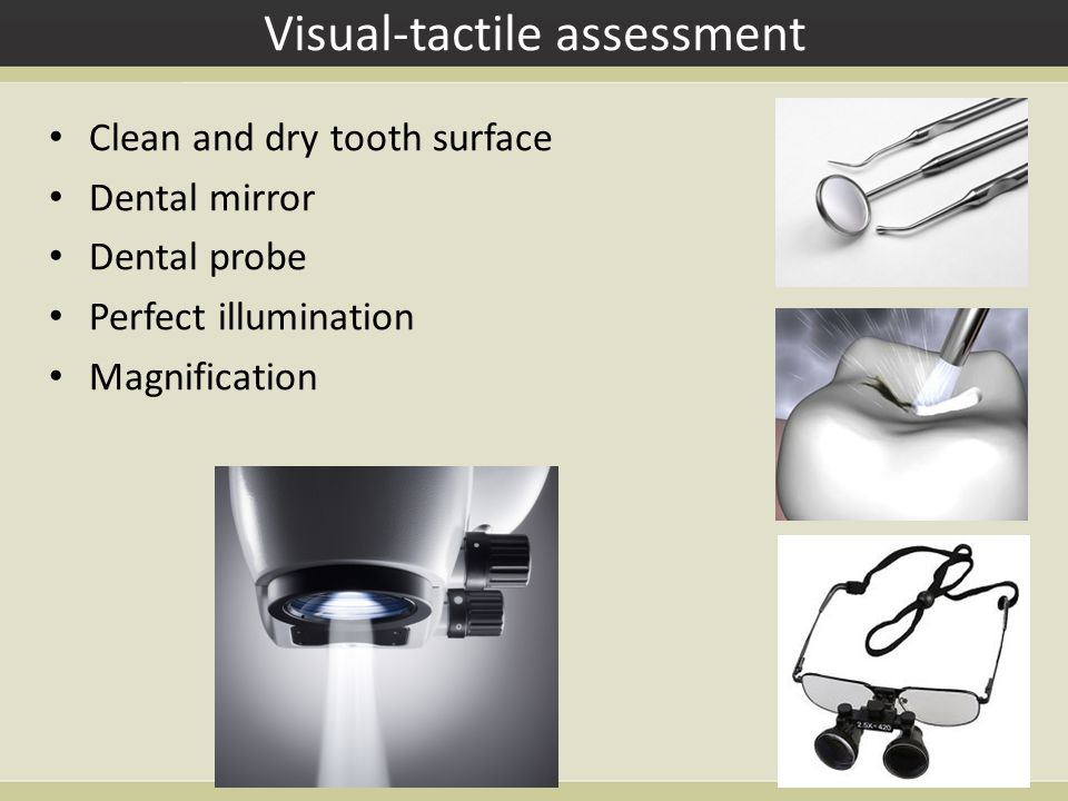Fiber Optic Transillumination (FOTI) Uses light transmission through the tooth Demineralized dental hard tissues scatter and absorb light more than sound tissue For enamel and dentin caries detection on occlusal, approximal and smooth surfaces of anterior and posterior teeth (carious lesions appear darker compared to sound tissue) Dia Lux (KaVo, Germany)