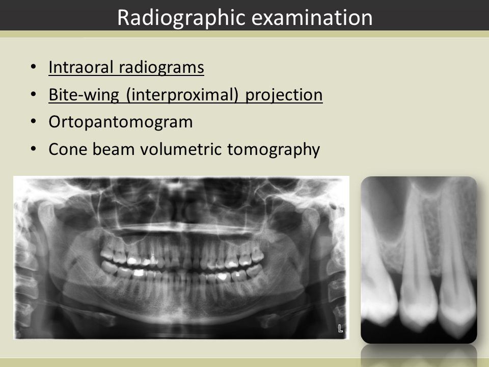 Parallel technique of radiogram making The radiogram is the most close to the real situation in the mouth (isometric orthoradial) It requares the use of special holders