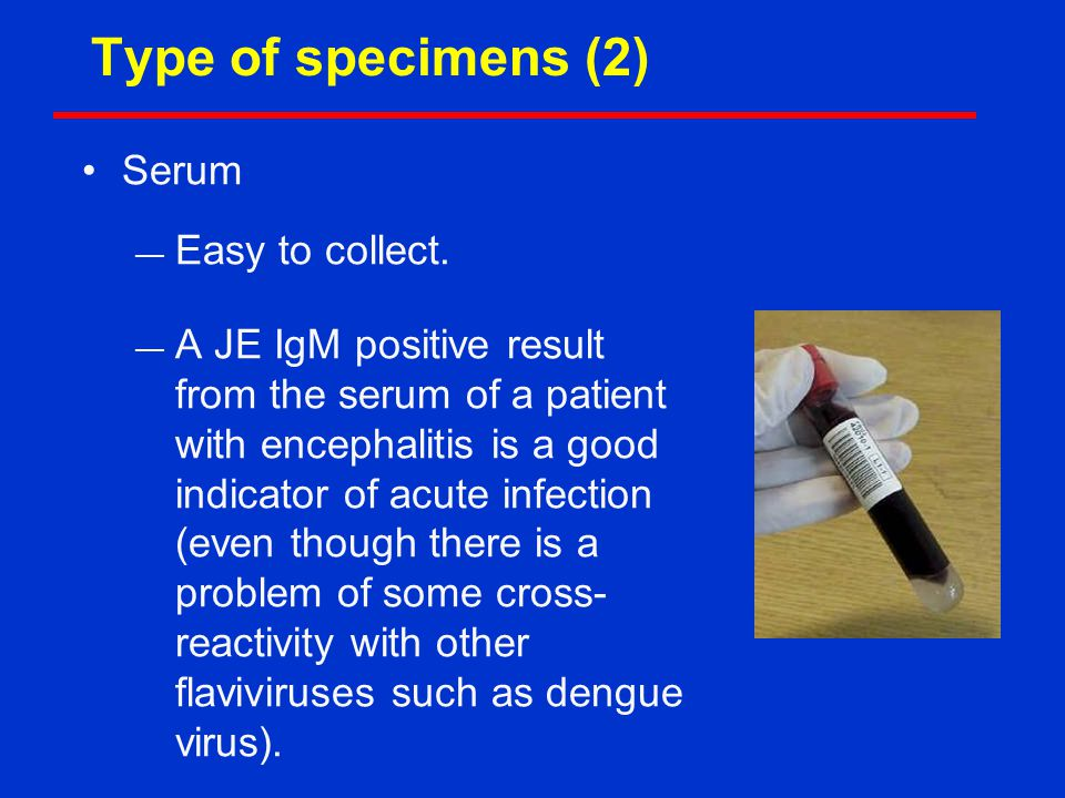 Type of specimens (2) Serum — Easy to collect.