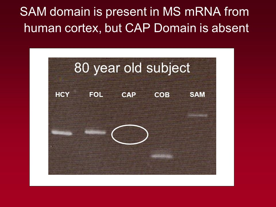 SAM domain is present in MS mRNA from human cortex, but CAP Domain is absent HCY FOL CAPCOB SAM 80 year old subject