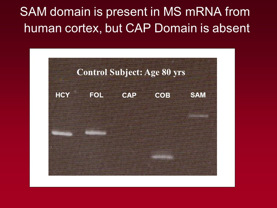 SAM domain is present in MS mRNA from human cortex, but CAP Domain is absent HCY FOL CAPCOB SAM Control Subject: Age 80 yrs