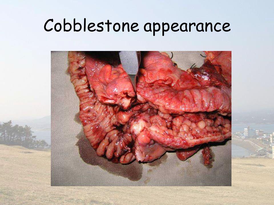 Cobblestone appearance