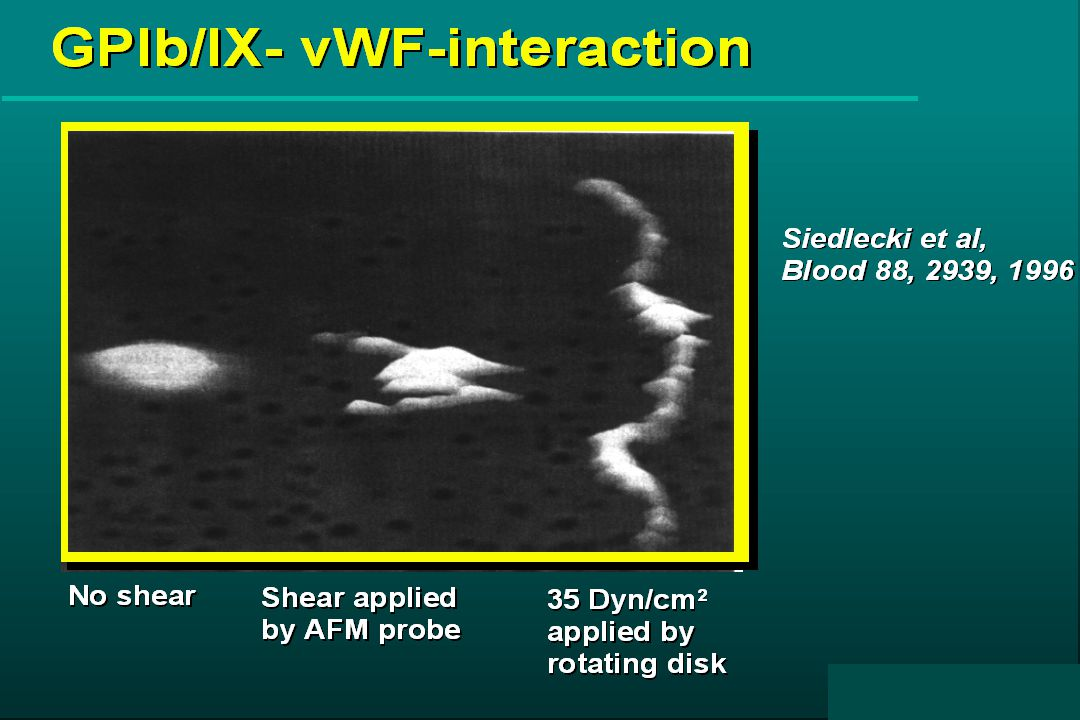 II. Inhibitory anti-vWF A3 domain antibody II. Inhibitory anti-vWF A3 domain antibody