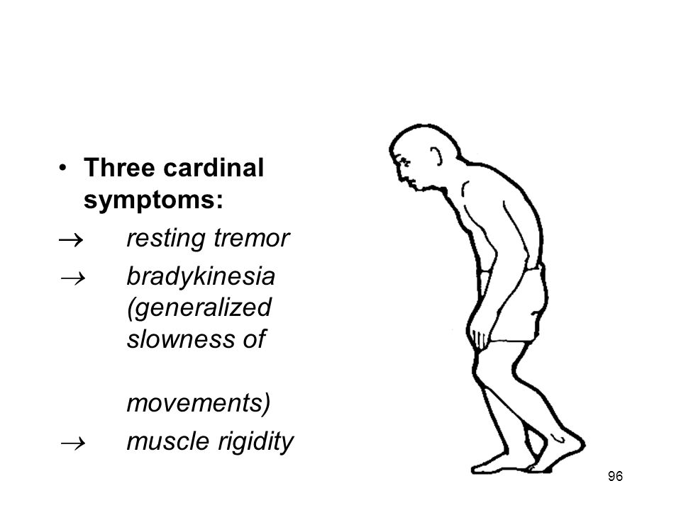 Clinical features of PD Three cardinal symptoms:  resting tremor  bradykinesia (generalized slowness of movements)  muscle rigidity 96