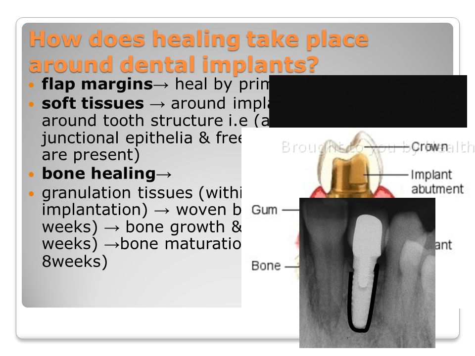 Does bone density affect implant dentistry? Implant to bone contact in D1 > D2 > D3 > D4 D1 D4