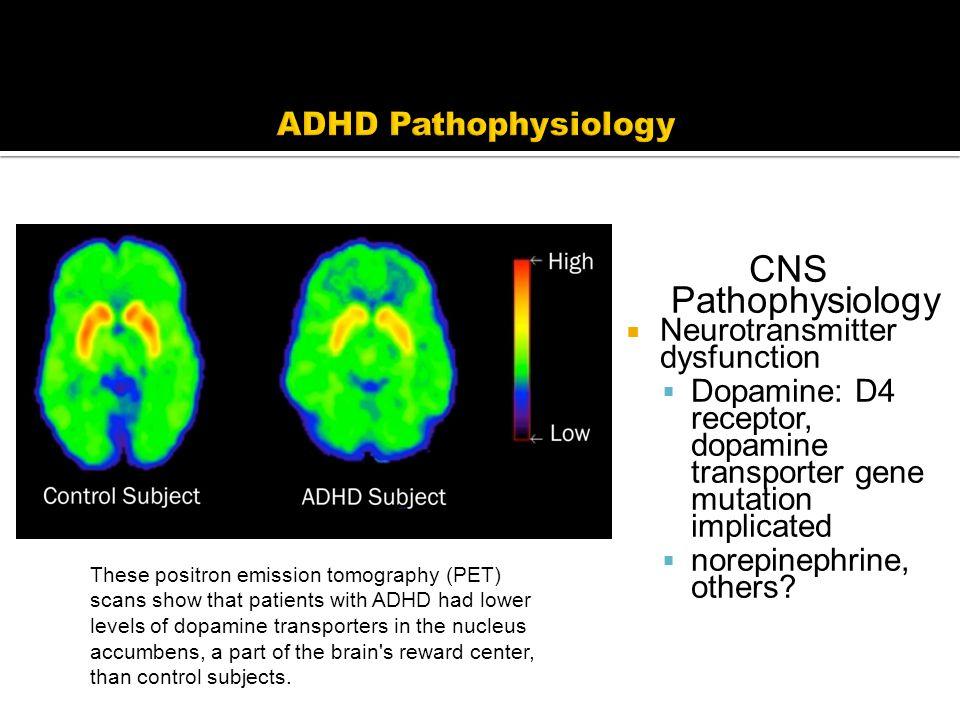 CNS Pathophysiology  Neurotransmitter dysfunction  Dopamine: D4 receptor, dopamine transporter gene mutation implicated  norepinephrine, others.