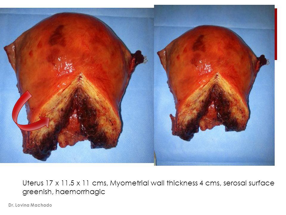 Uterus 17 x 11.5 x 11 cms, Myometrial wall thickness 4 cms, serosal surface greenish, haemorrhagic Dr.