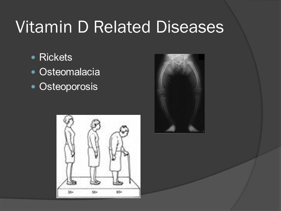 Vitamin D Related Diseases Rickets Osteomalacia Osteoporosis