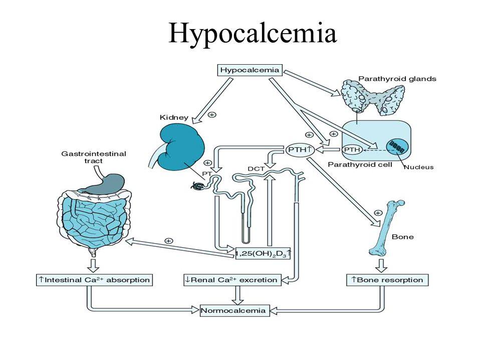 Hypocalcemia
