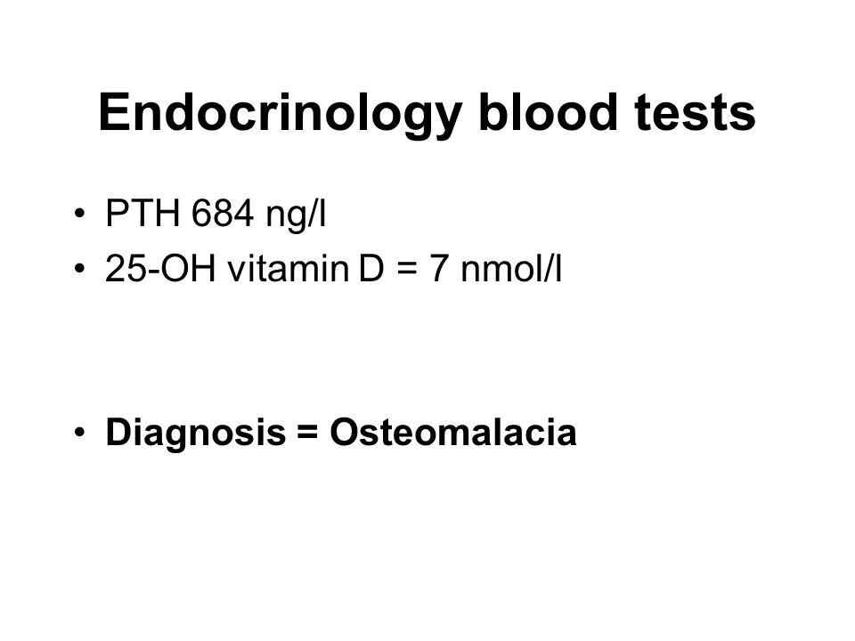 Endocrinology blood tests PTH 684 ng/l 25-OH vitamin D = 7 nmol/l Diagnosis = Osteomalacia