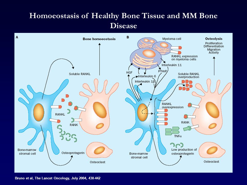 Bruno et al, The Lancet Oncology, July 2004, 430-442 Homoeostasis of Healthy Bone Tissue and MM Bone Disease