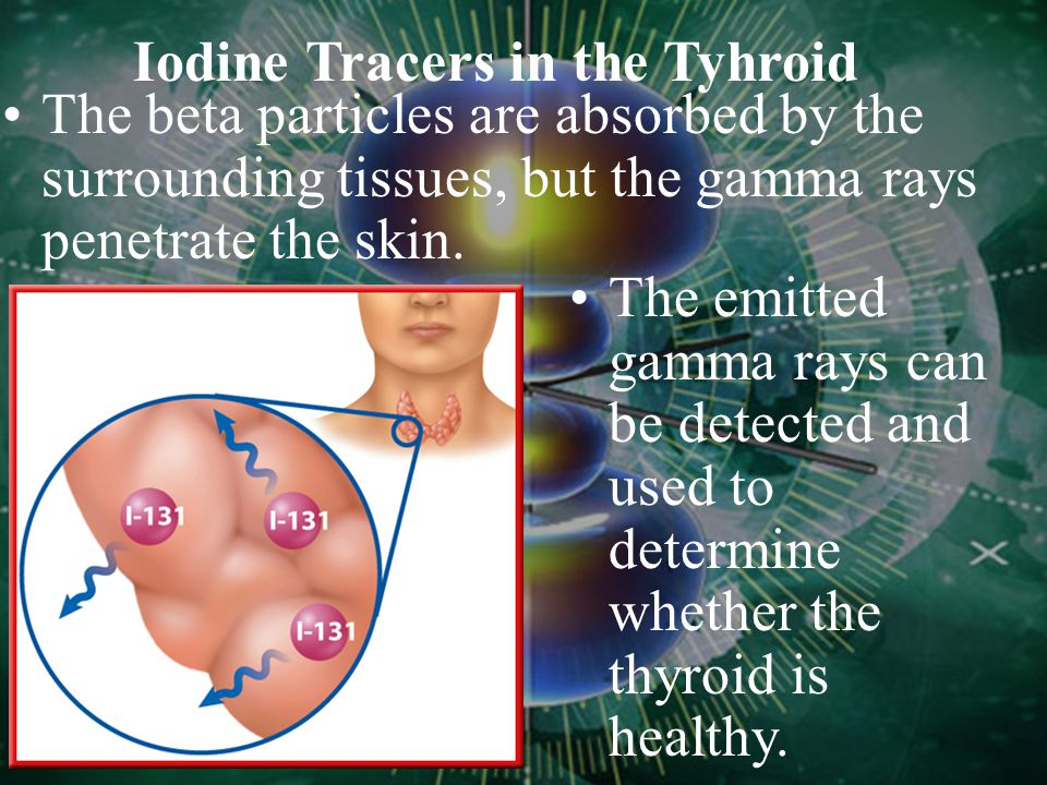 Iodine Tracers in the Tyhroid Because the element iodine accumulates in the thyroid, the radioisotope iodine- 131 can be used to diagnose thyroid prob